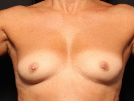 before silicone implants, front