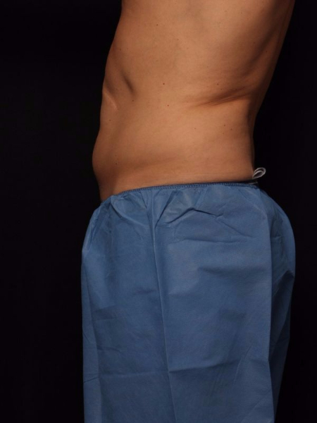 before abdomen coolsculpting, side view