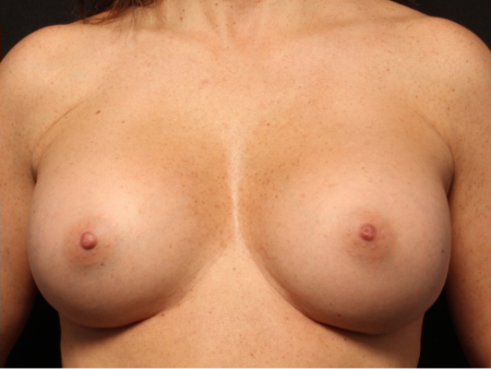 after silicone implants, front