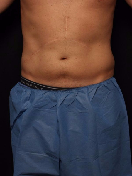 before abdomen coolsculpting, front view