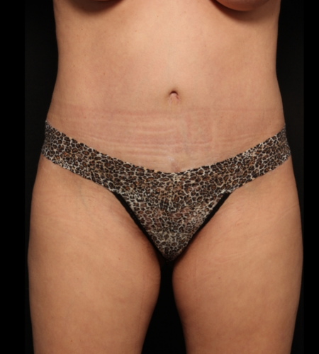 after abdominoplasty, front
