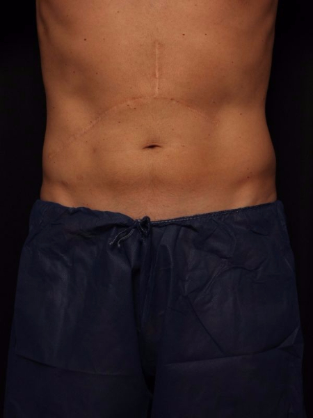 after abdomen coolsculpting, front view