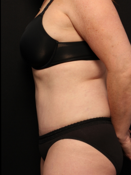 after abdominoplasty with lipo to the flanks, side view