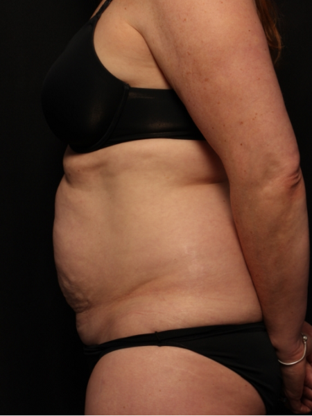 before abdominoplasty with lipo to the flanks, side view