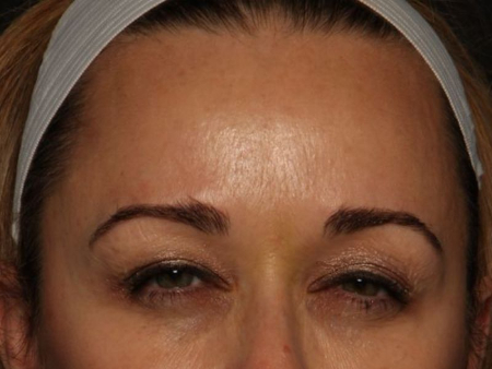 after botox 11 lines