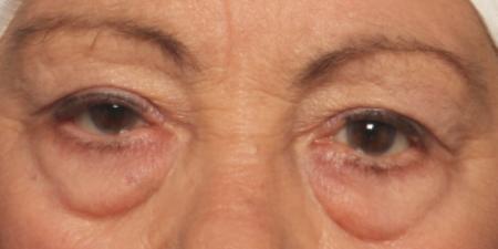 before eyelid surgery