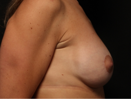 after, side view: Breast augmentation with silicone implants and breast lift