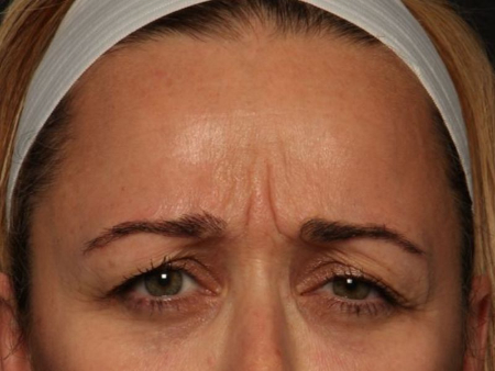 before botox 11 lines