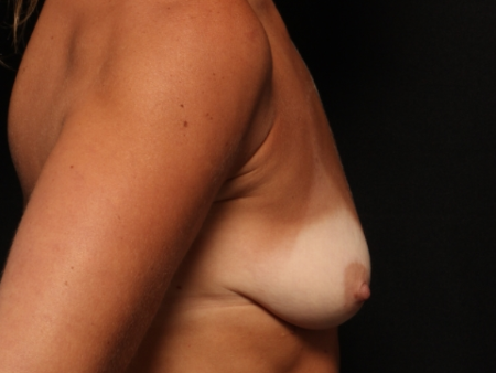 before, side view: Breast augmentation with silicone implants and breast lift