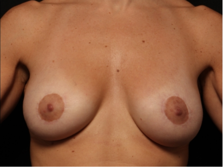 after, front view: Breast augmentation with silicone implants and breast lift