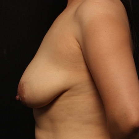 before breast augmentation with lift, side