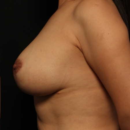 after breast augmentation with lift, side
