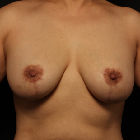after breast augmentation with lift, front