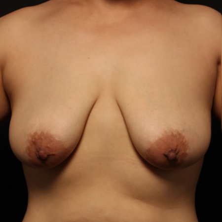 before breast augmentation with lift, front
