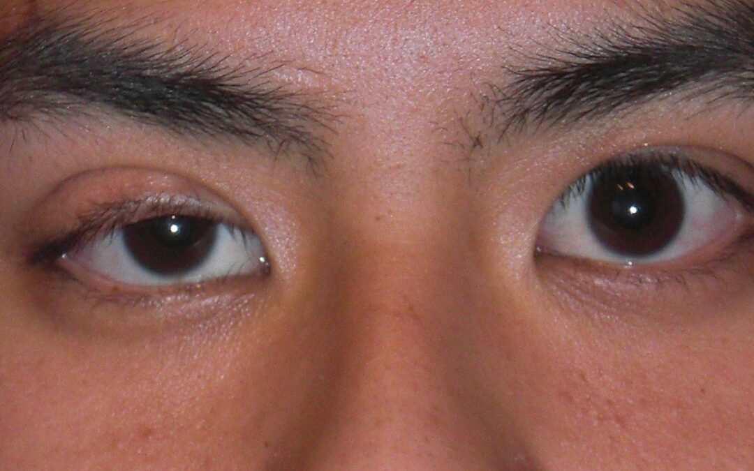 Eyelid Ptosis Surgery Explained: Frequently Asked Questions