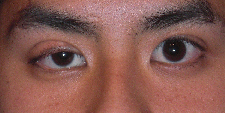Congenital ptosis