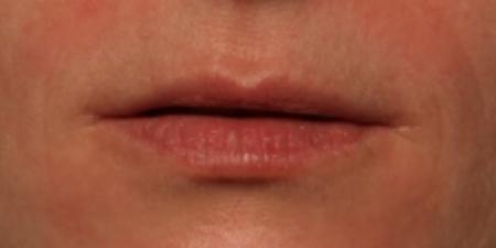 before volbella to lips