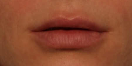 after volbella to lips