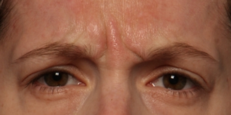 after Botox Cosmetic to facial lines between the brows