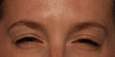 before Botox Cosmetic to facial lines between the brows
