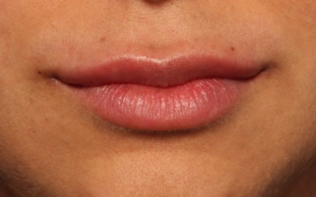 Lip Augmentation Before and After Photo Gallery - The