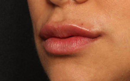 after lip fillers