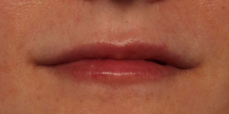 after Juvederm Ultra Plus XC to upper and lower lips