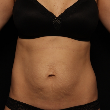 before abdominoplasty, front