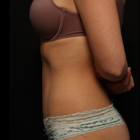 after abdominoplasty, side