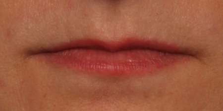 before Juvederm Ultra Plus XC to upper and lower lips