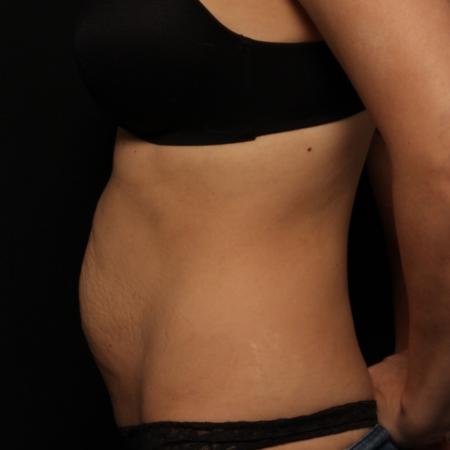 before abdominoplasty, side