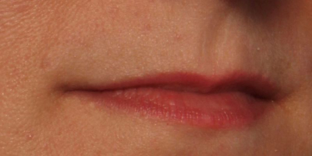 before before Juvederm Ultra Plus XC to upper and lower lips