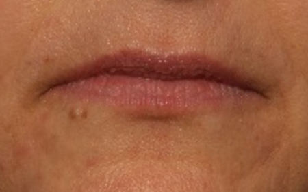 before juvederm to lips