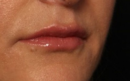 after juvederm to lips