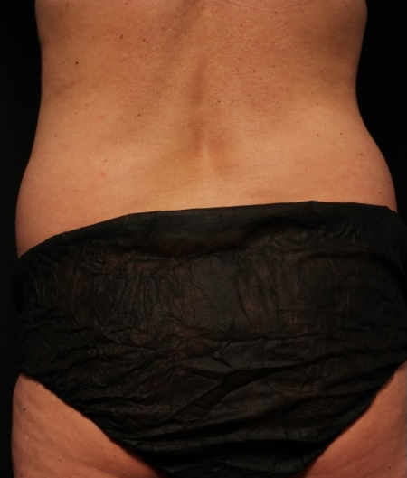 coolsculpting to flanks, before