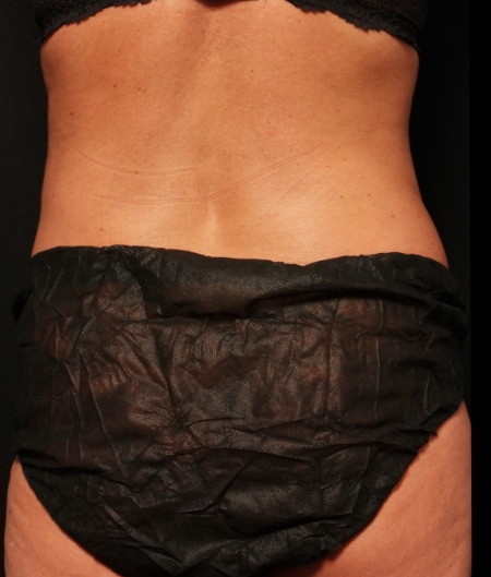 coolsculpting to flanks, after