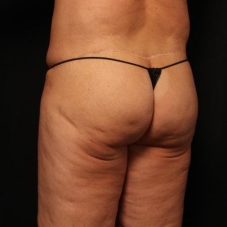 butt lift after
