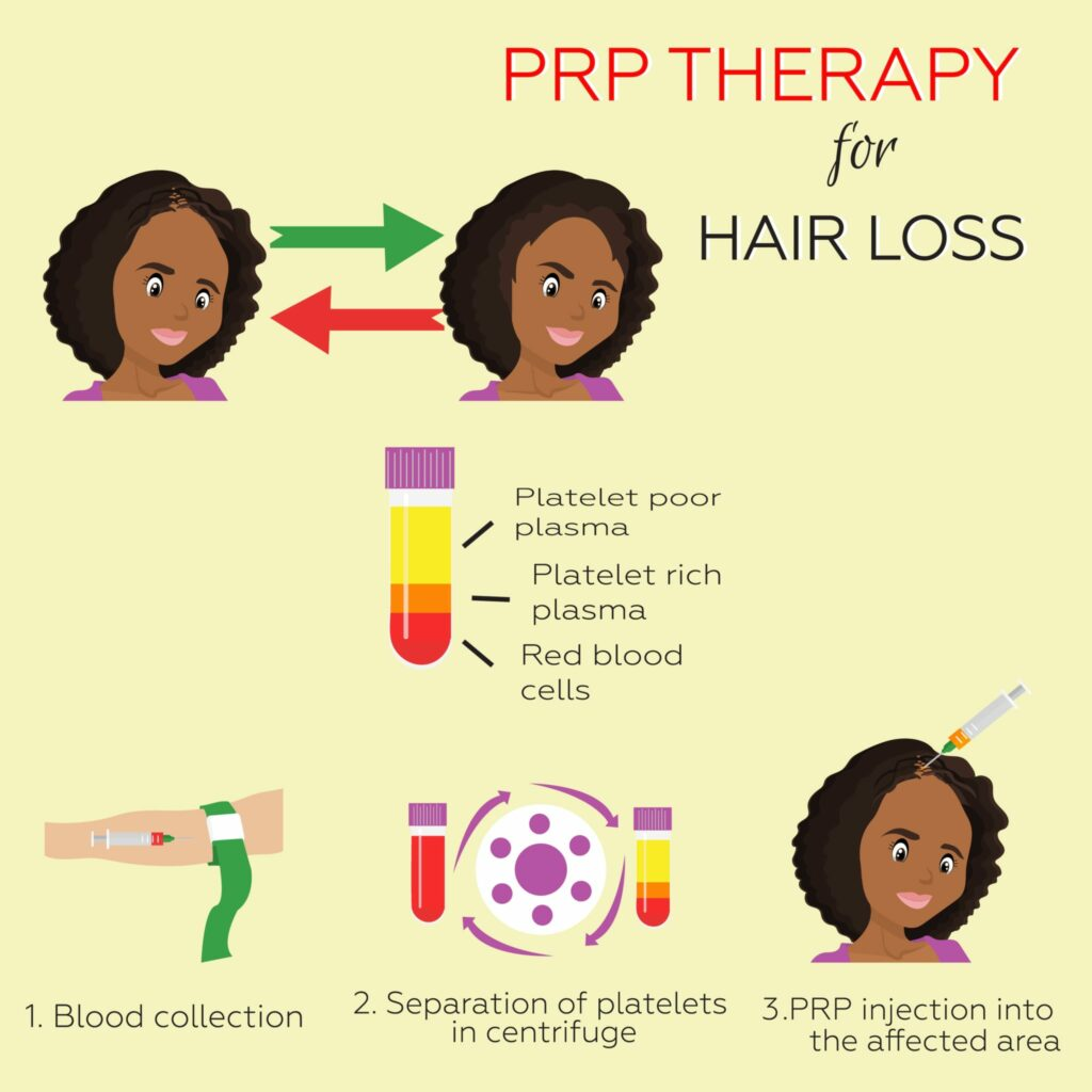 prp-hairloss-infographic