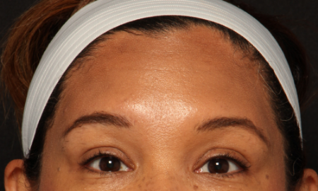 after forehead botox