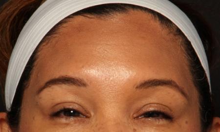 after brow botox