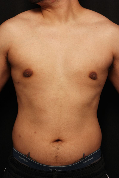 after male breast surgery, front view