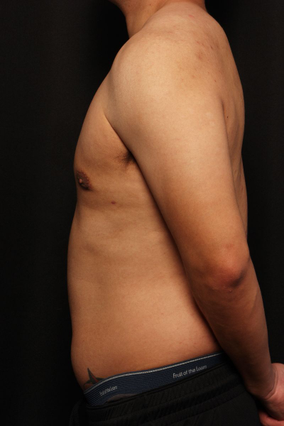 after male breast surgery, side view