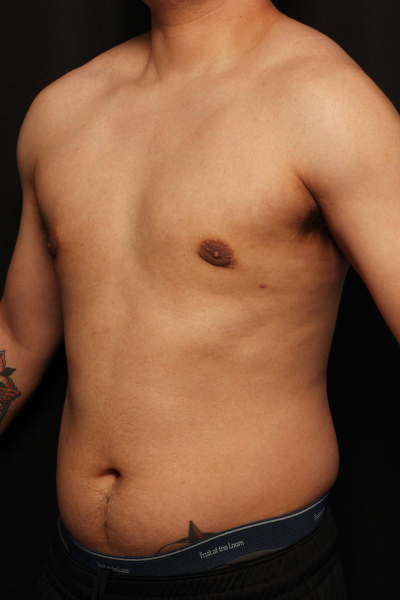 before male breast surgery, side view