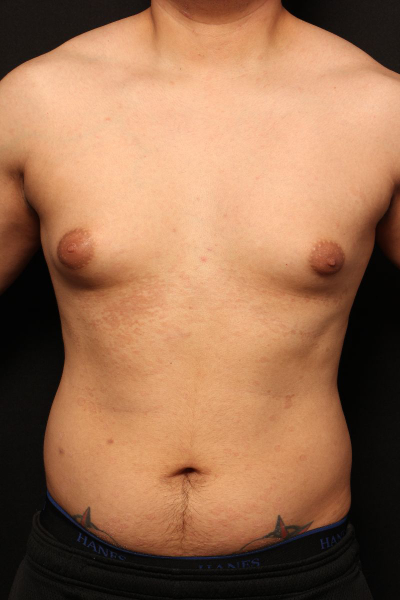 before male breast surgery, front view