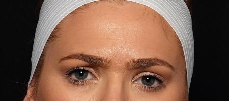 botox forehead before