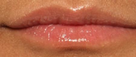 before lip juvederm
