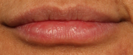 after lip juvederm