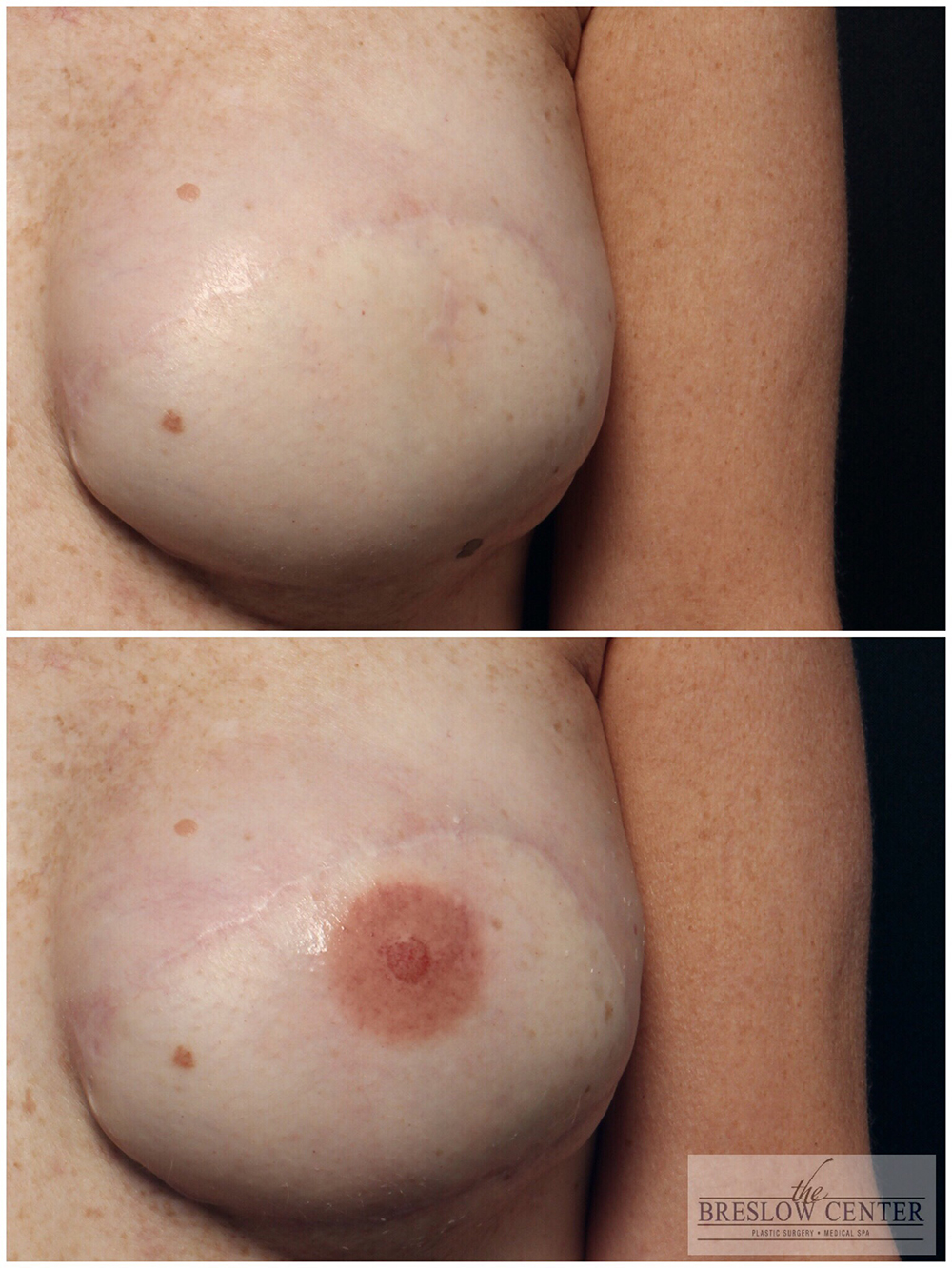 before and after micropigmentation