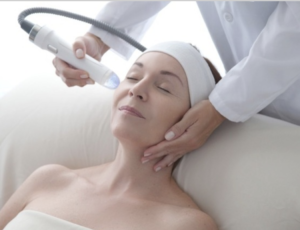 Women receiving microneedling treatment from Vivace machine