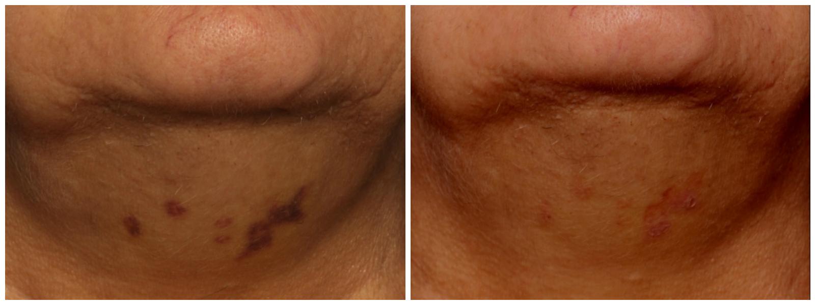 bbl-bruising